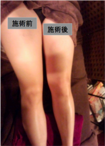 池袋漢方五行リンパエステ 小顔脚やせお腹体質改善